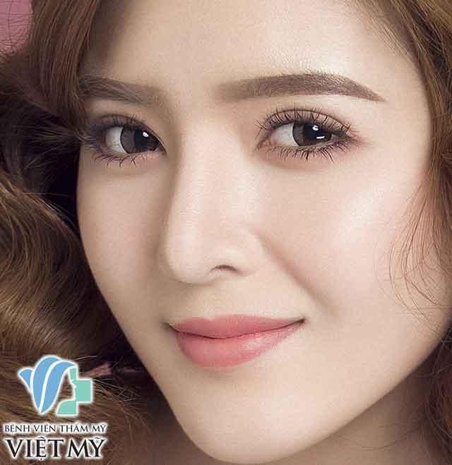 Cắt Mắt 2 Mí Hàn Quốc - bác sĩ Chiêm Quốc Thái