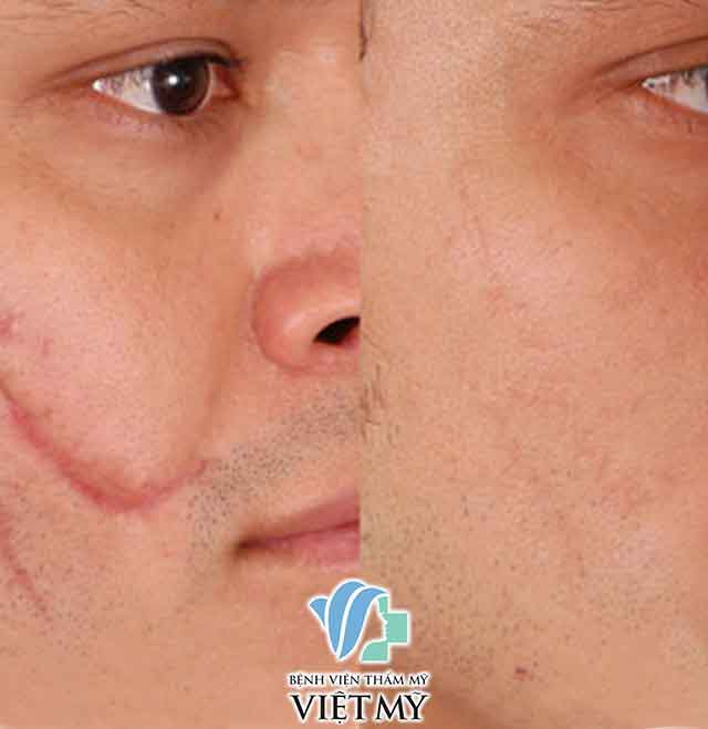 Laser Treatment for acne, bad scars, stretch marks