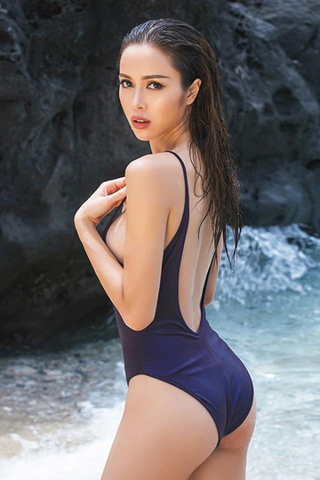 Hoa hậu Vũ Ngọc Anh sau phẫu thuật thẩm mỹ