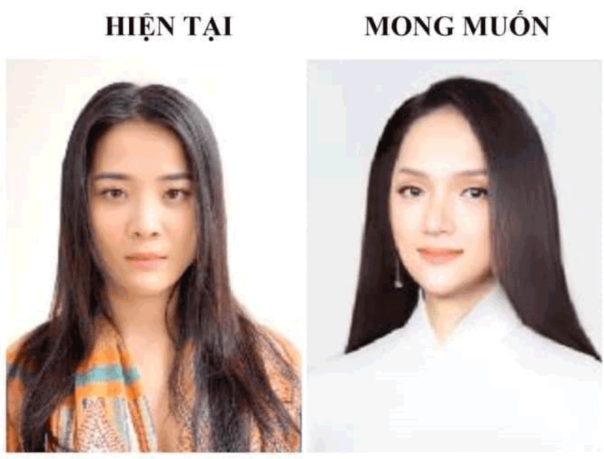 Hoa hậu Hương Giang phẫu thuật thẩm mỹ quá đẹp, dân tình rần rần đòi...